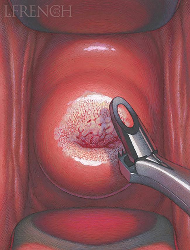 Cervical Biopsy