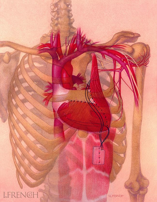 Cardiomyoplasty, for Critical Care Nursing Magazine cover