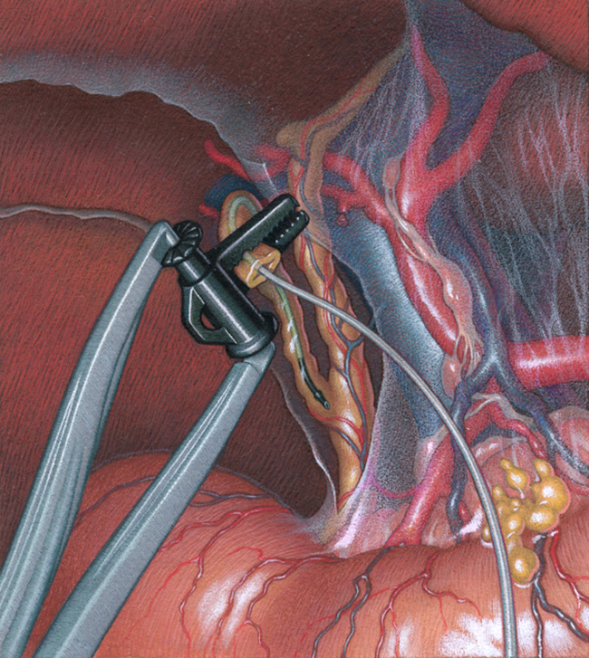 Gall Bladder Removal for American Edwards, gouache