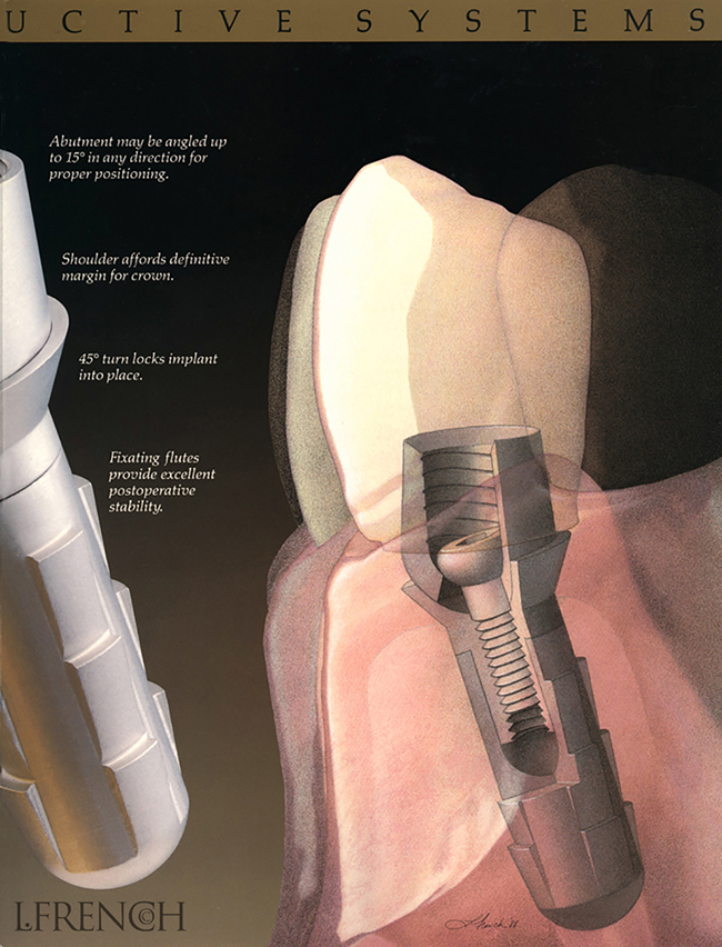 Dental Implant for Hall endosseous implant brochure
