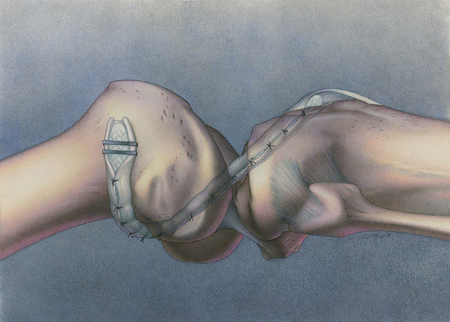 Ligament Augmentation Device for direct mail brochure, pastel & color pencil
