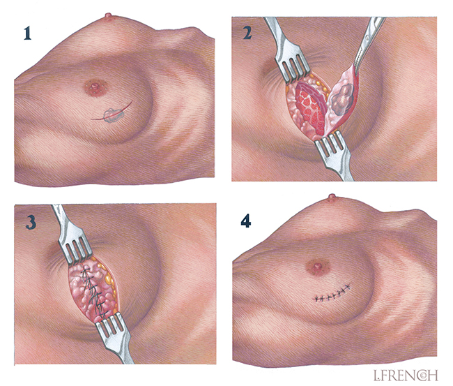 Surgical Lumpectomy Technique, for brochure