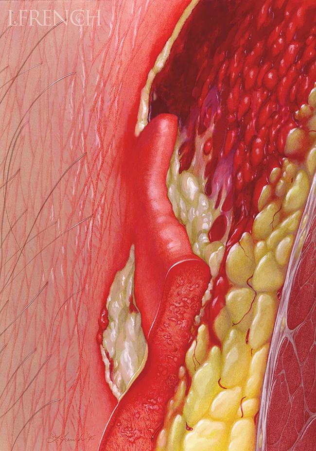 Meleney's Gangrene, for Critical Care Nursing Magazine cover