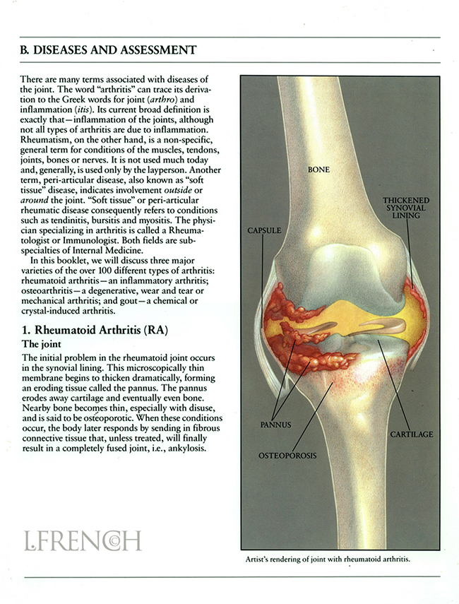 Rheumatoid Arthritis, for Anaprox pain reliever brochure